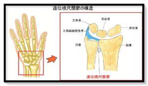 遠位橈尺関節